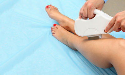 Where to find the best Laser Hair Removal in Durban